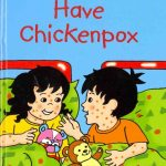 Topsy and Tim have Chickenpox